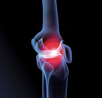What s new orthopedic regenerative medicine center of for Fish oil for knee pain