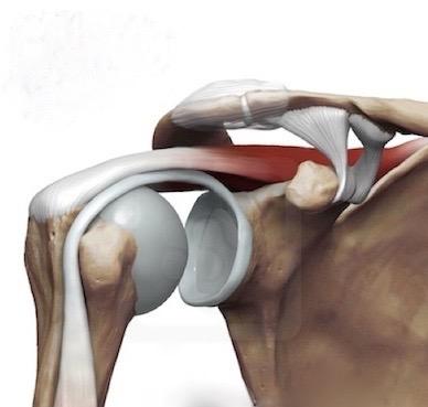 Shoulder Impingement Syndrome And Shoulder Pain